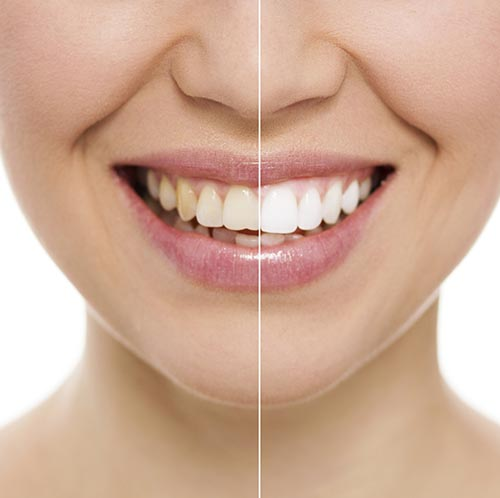 Teeth Whitening at Scappoose Family Dentistry